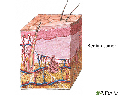 Benign tumour of the skin. Benign tumor on dog; benign growth on dog; non cancerous tumours in dogs