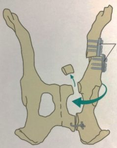 TPO 3 Diagram showing procedure of Triple Pelvis Osteotomy done in dog