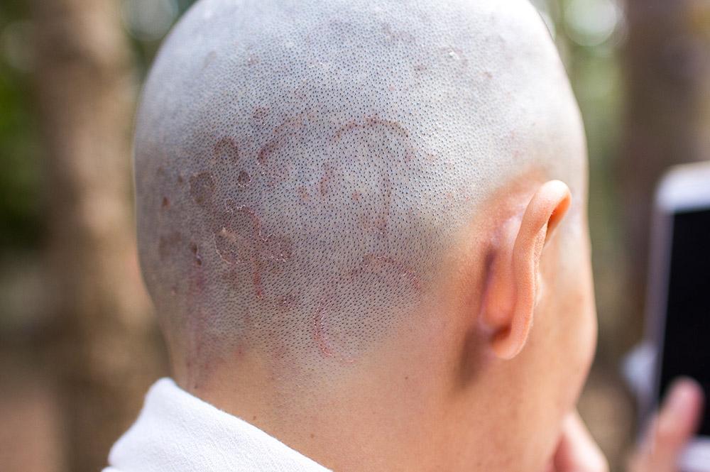 ringworm on human scalp